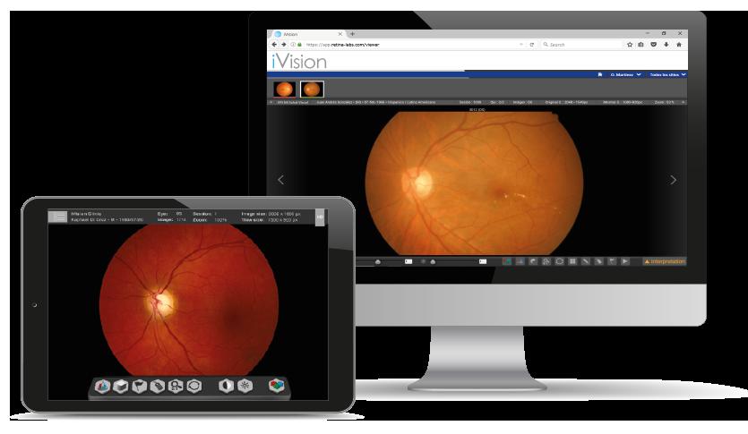 iVision Teleretinal Screening Solution