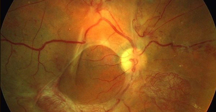 Fundus Photo: Macular Edema